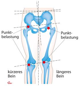 Wirbelsäulen-Basis-Ausgleich